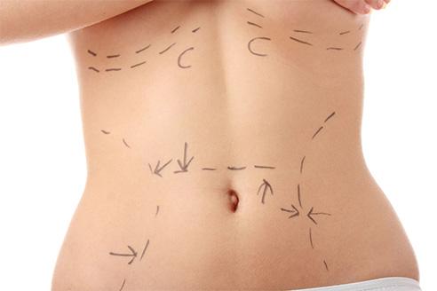 Yağ Emme (Liposuction)